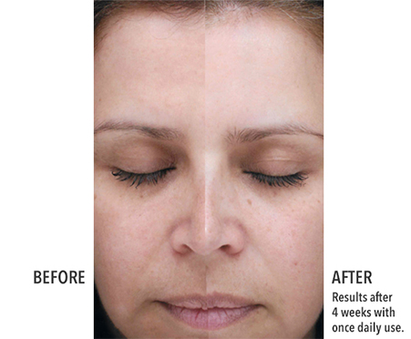 Corrective Lightening Treatment with 2% Hydroquinone