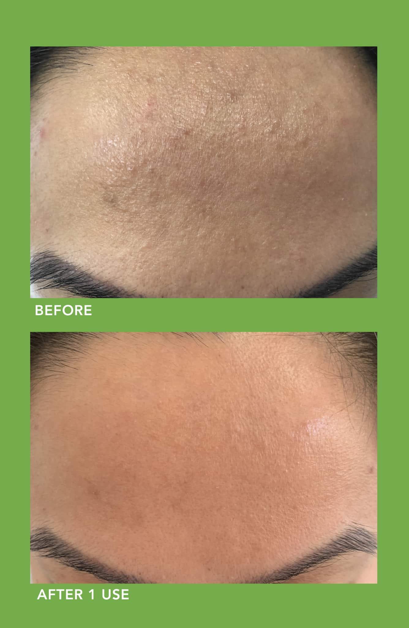Lancer Skincare Clarifying Detox Mask with Green Tea + 3% Sulfur